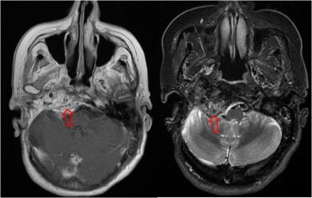 Imágenes de RM con un paraganglioma (flechas).