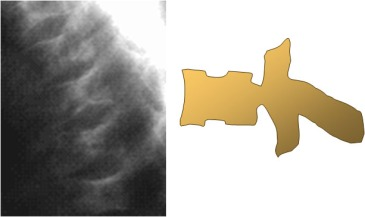 vertebra H