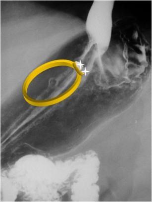 anillo ulcera
